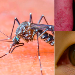 Zika Virus – 5 things you need to know about the newly worldwide spread virus called Zika