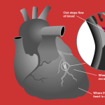 85% of Heart Attacks Could Be Avoided If Everyone Did These 5 Easy Things