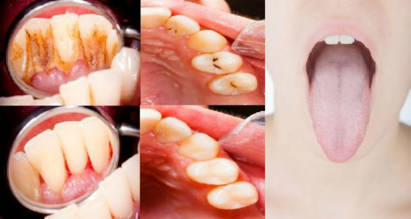 Secret Guides How to Remove Tartar and Plaque, Heal Cavities and Detox Your Mouth at Home Naturally