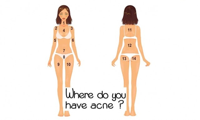 The-Position-of-Acne-on-Your-Body-Can-Show-You-The-Disease-You-Suffer-From-640x386