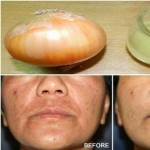 What will Happen to your Face if you Apply Onion juice for 40 Days?
