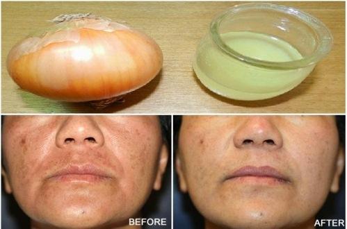 onion for skin whitening