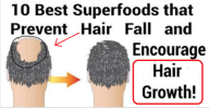 Prevent Hair Loss With This 10 Superfoods Very Easy and Very Quick!