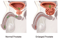 9 Useful Natural Remedies for Enlarged Prostate – Shrink the Prostate in a Painless Way