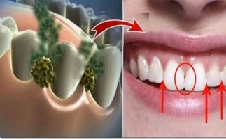 ELIMINATE-BAD-BREATH-IN-5-MINUTES-THIS-REMEDY-WILL-DESTROY-ALL-THE-BACTERIA-THAT-CAUSE-BAD-BREATH